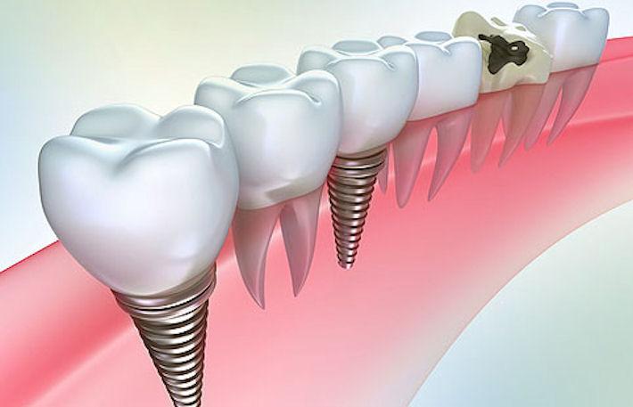 Ортопедическая стоматология. Протезирование зубов