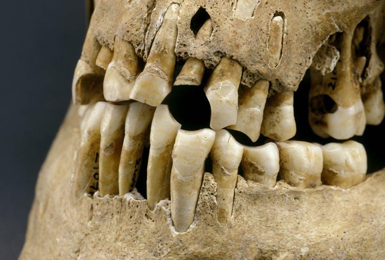 Сахар ни при чем: у наших древних предков были такие же проблемы с зубами
