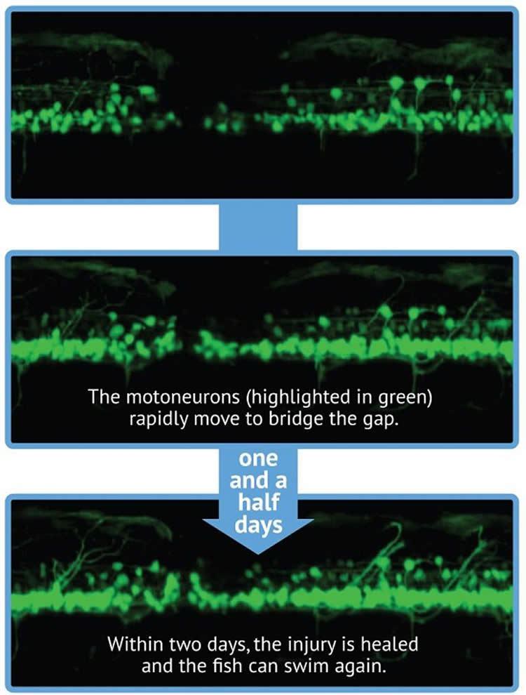Ученые восстановили спинной мозг при помощи стволовых клеток