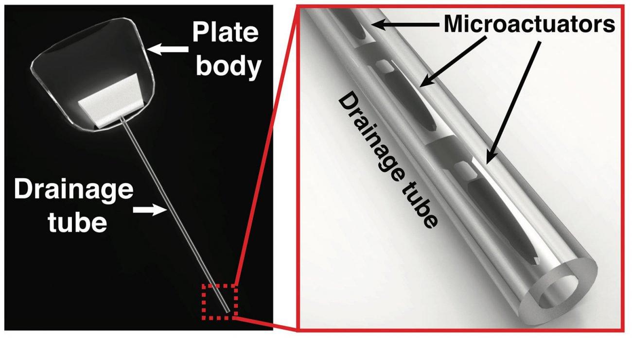 Создан магнитный глазной имплантат, который защитит от глаукомы