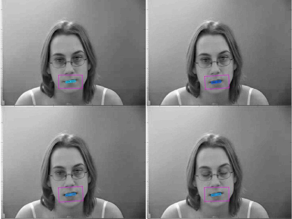 Ученые придумали слуховой аппарат для чтения по губам