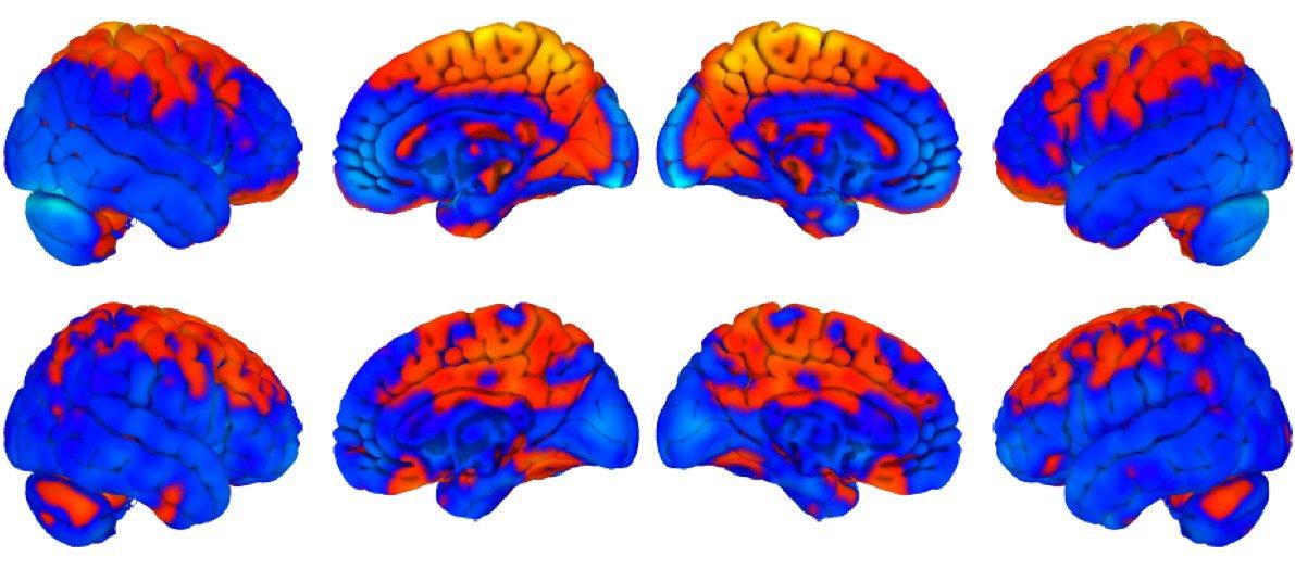 Что происходит с мозгом в условиях невесомости?