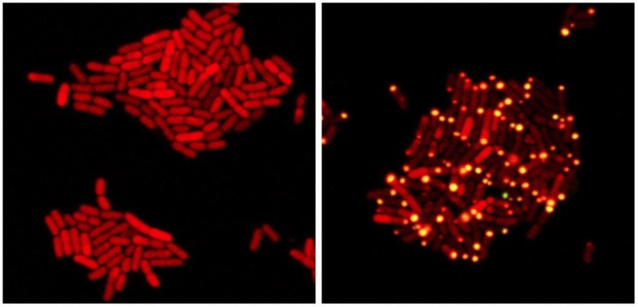 «Подслушивающие» вирусы оказались эффективными убийцами бактерий